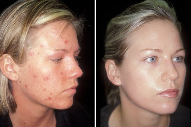 Dermology Acne Solution Testimonials