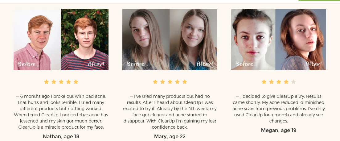 clearup acne control testimonial image