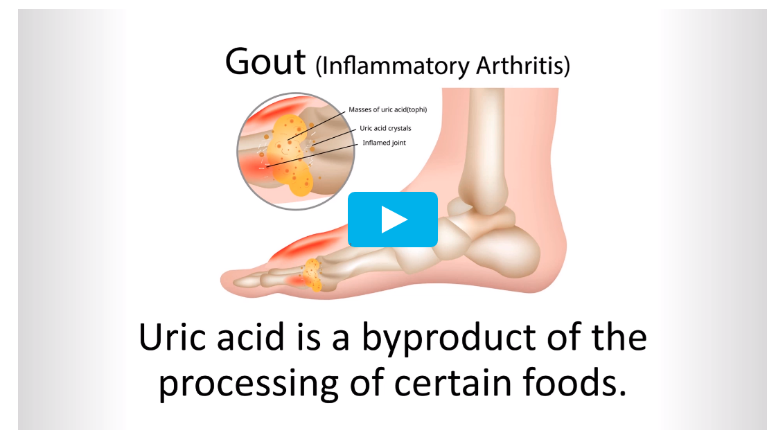 End Of Gout Review – A Complete Guide To Gout!!